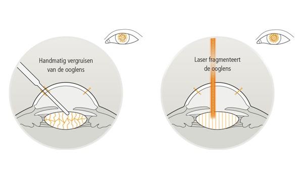 Eyescan-fragmenteren-ooglens.jpg