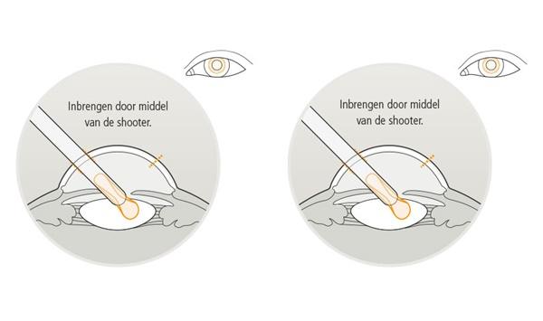 Eyescan-inbrengen.jpg
