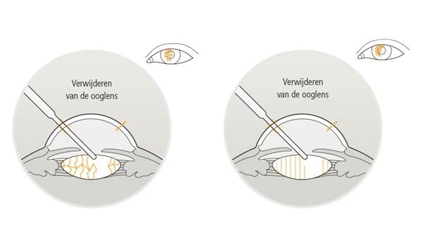 Eyescan-verwijderen-ooglens.jpg