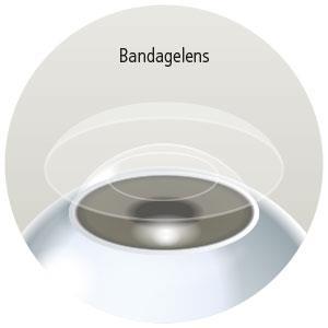 Eyescan_ooglaseren_bandagelens.jpg